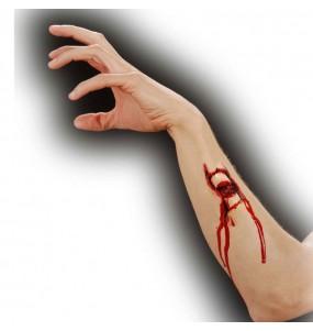 Prothèse - Effet Fracture os